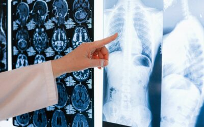 Ecocardiografia transtoracica, un instrument esențial