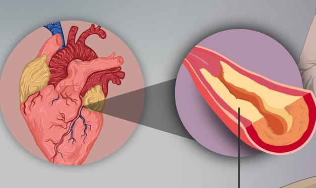 Aproximativ jumătate dintre persoanele care trăiesc cu HIV prezintă placă aterosclerotică