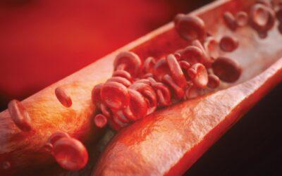 Peste 40% dintre adulții fără boli cardiace cunoscute au depozite grase în arterele inimii
